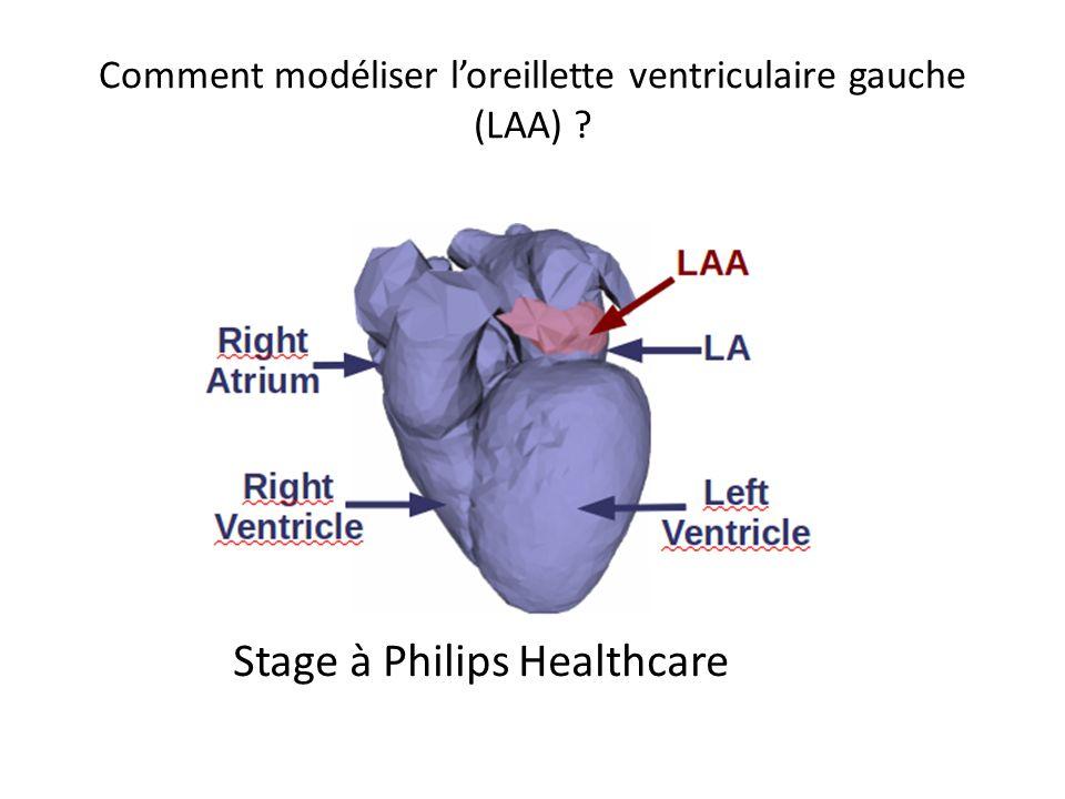 Comment modéliser l'oreillette ventriculaire gauche (LAA)