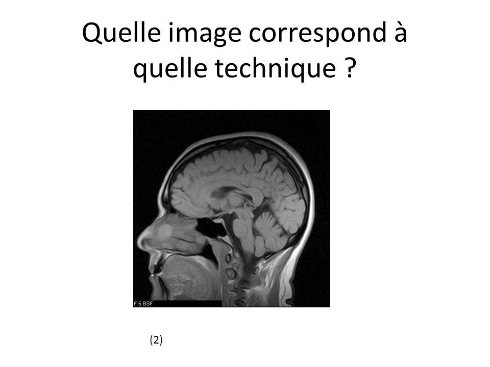 Quelle image correspond à quelle technique