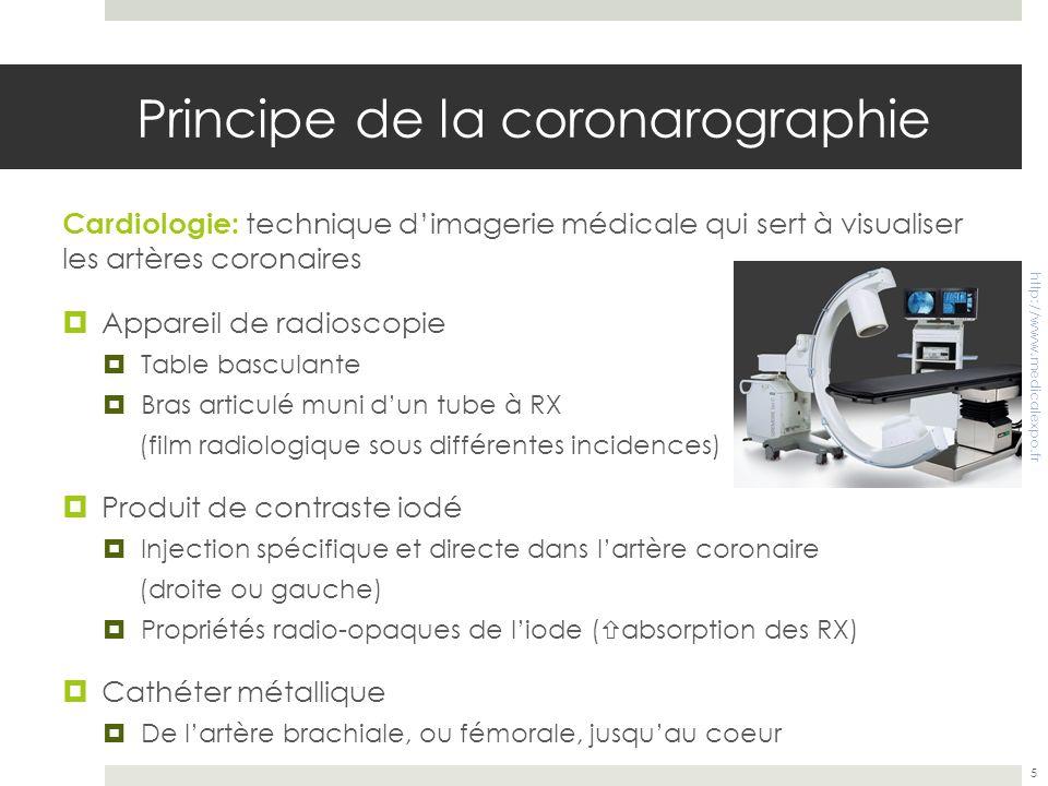 Principe de la coronarographie