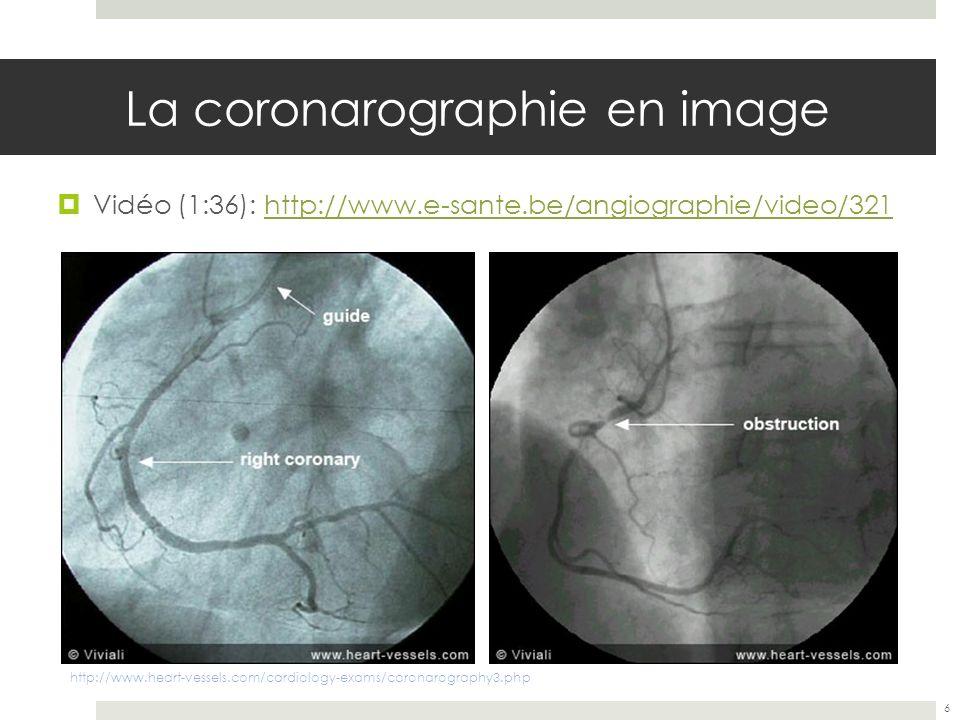 La coronarographie en image
