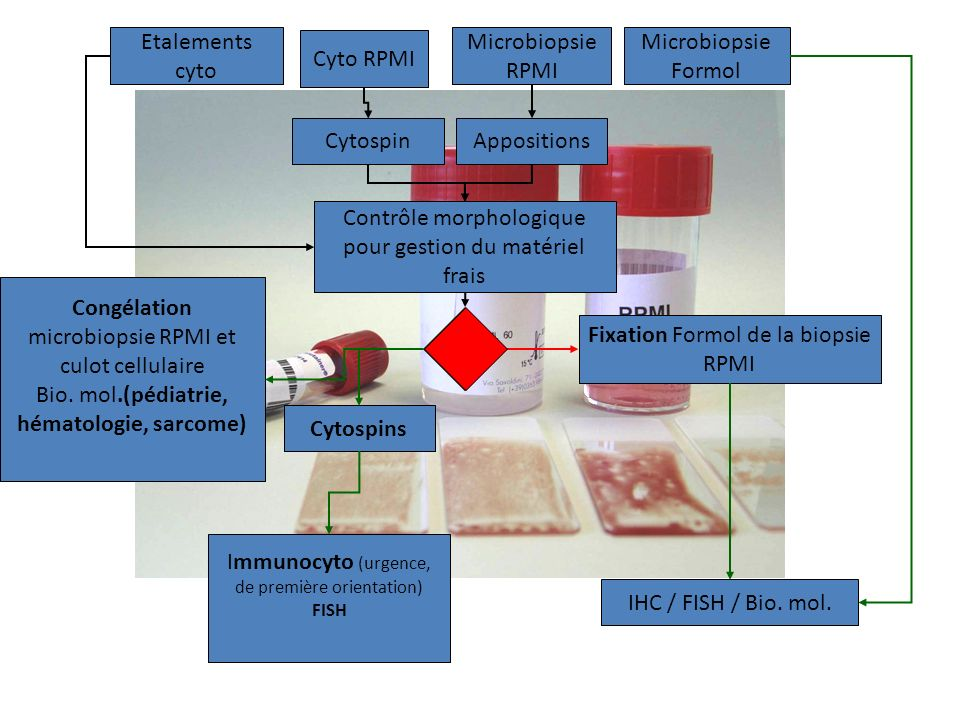 Contrôle morphologique pour gestion du matériel frais