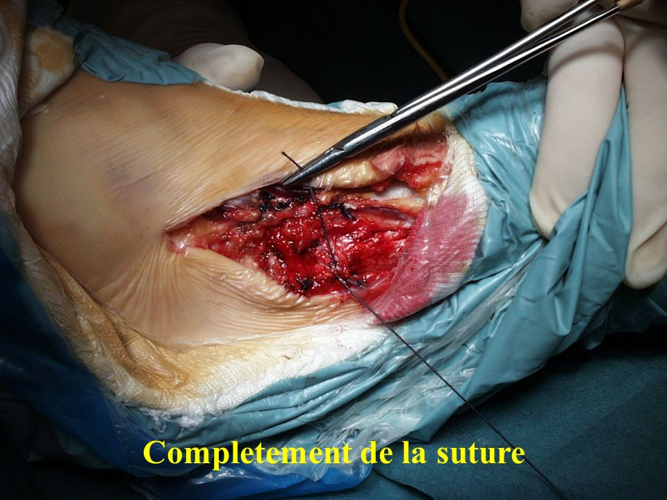 Completement de la suture