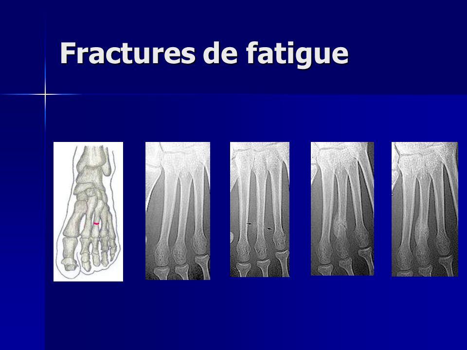 Fractures de fatigue Les fractures de fatigue sont malheureusement une manifestation relativement fréquente de surcharge.