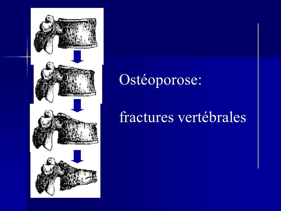 Ostéoporose: fractures vertébrales