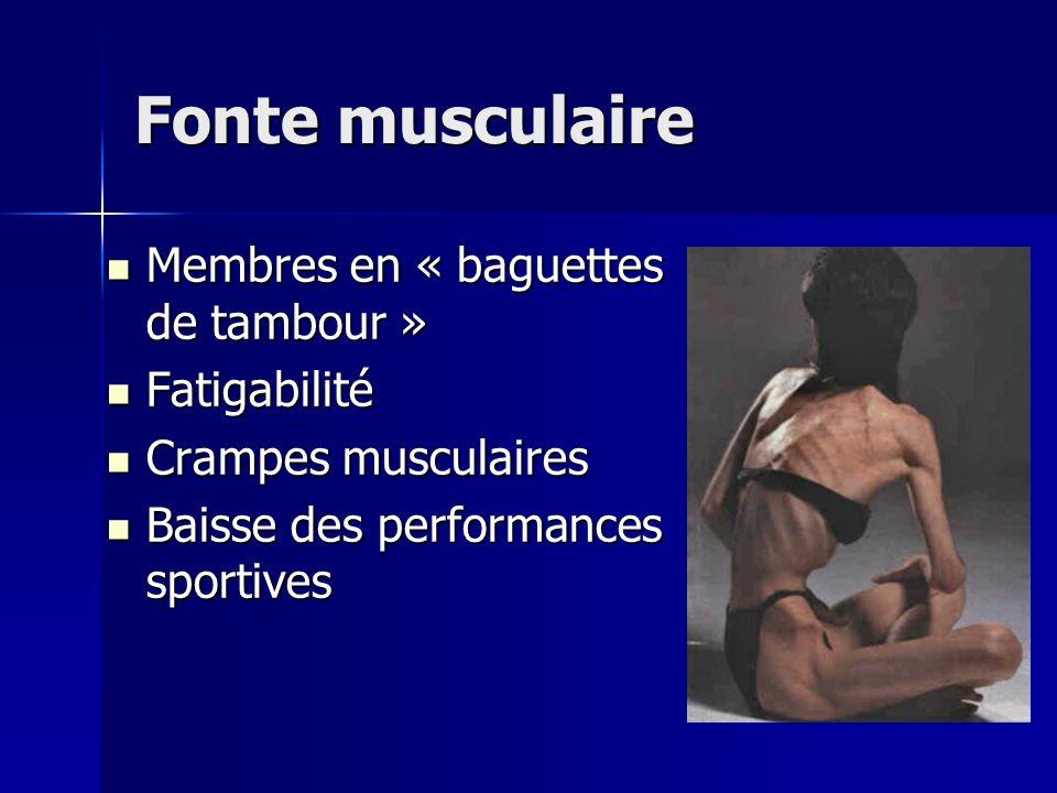 Fonte musculaire Membres en « baguettes de tambour » Fatigabilité
