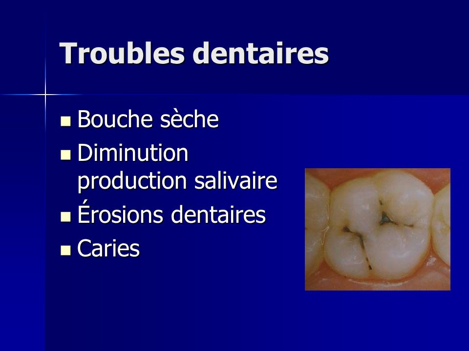Troubles dentaires Bouche sèche Diminution production salivaire