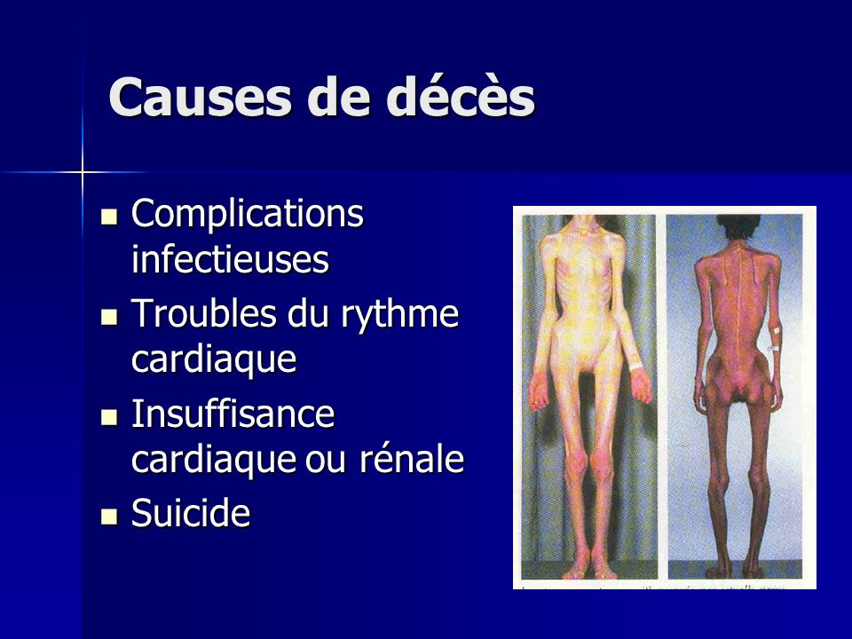 Causes de décès Complications infectieuses