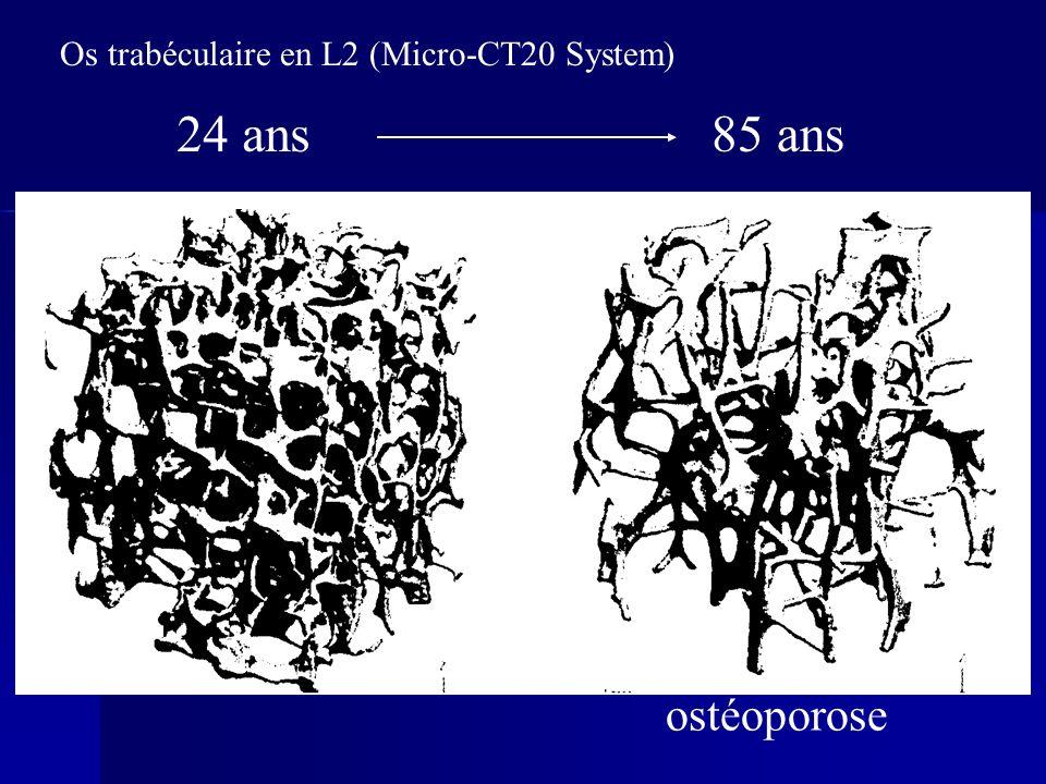 Os trabéculaire en L2 (Micro-CT20 System)