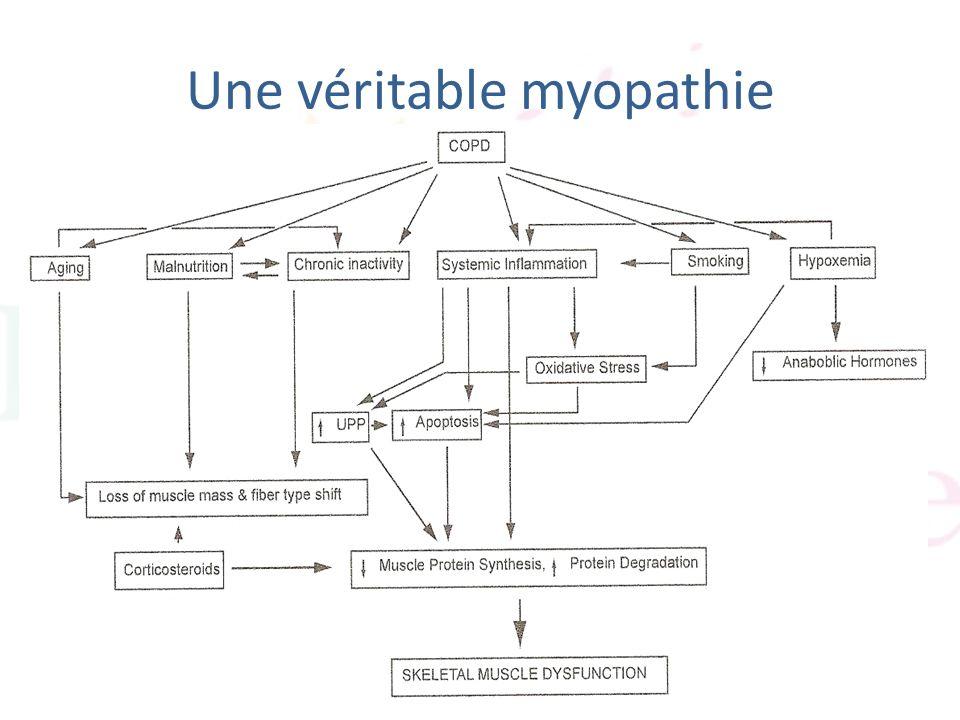 Une véritable myopathie