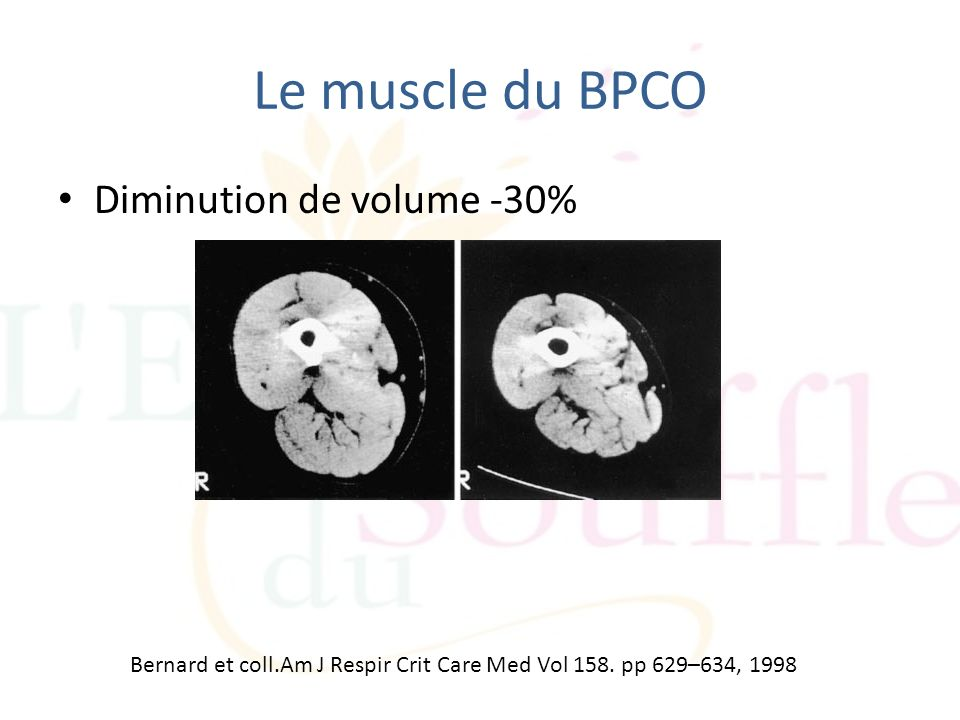 Le muscle du BPCO Diminution de volume -30%