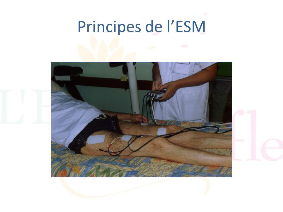 Principes de l'ESM