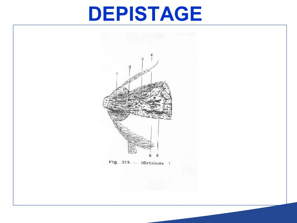 DEPISTAGE