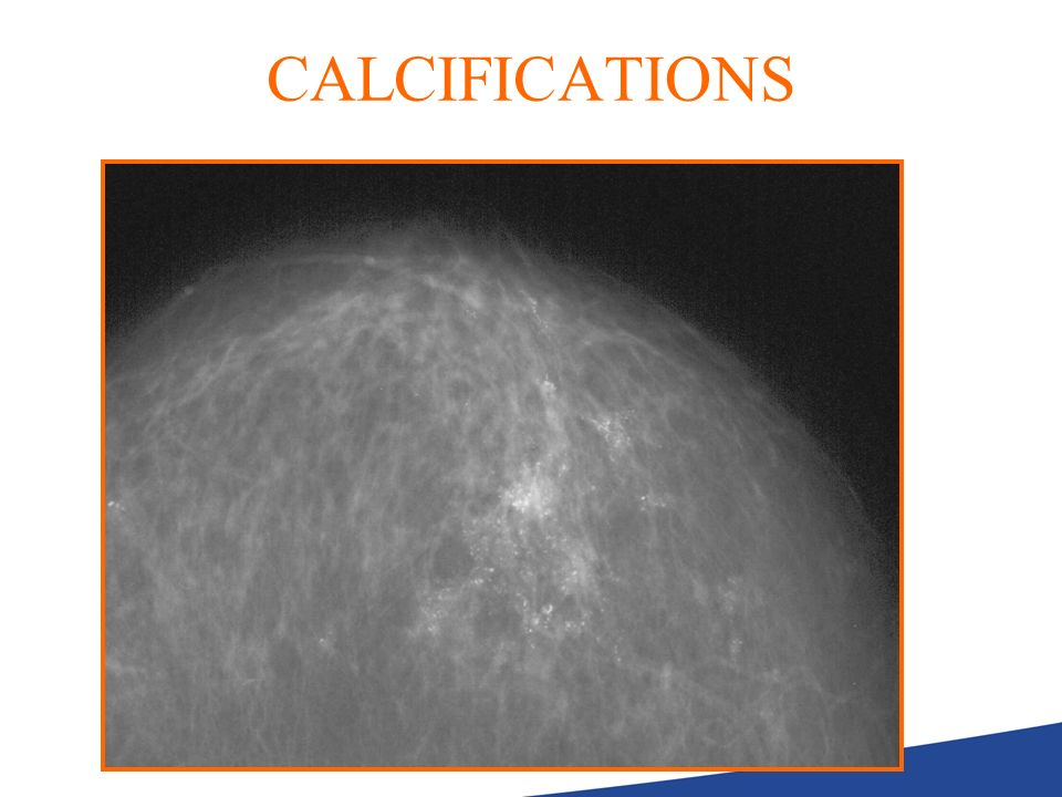 CALCIFICATIONS