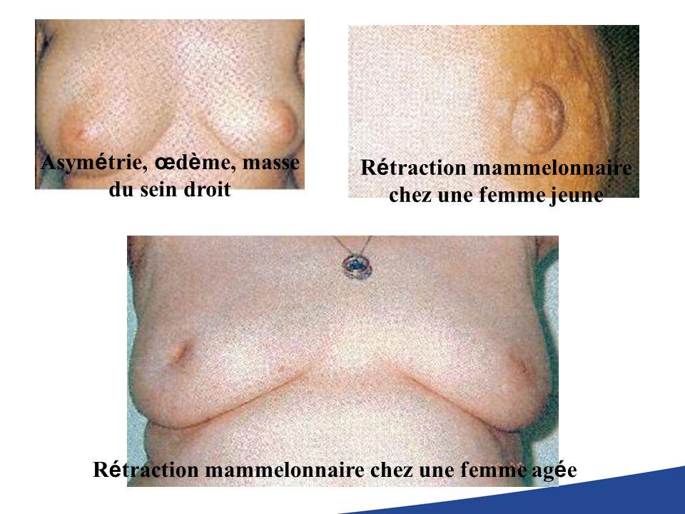 Asymétrie, œdème, masse du sein droit