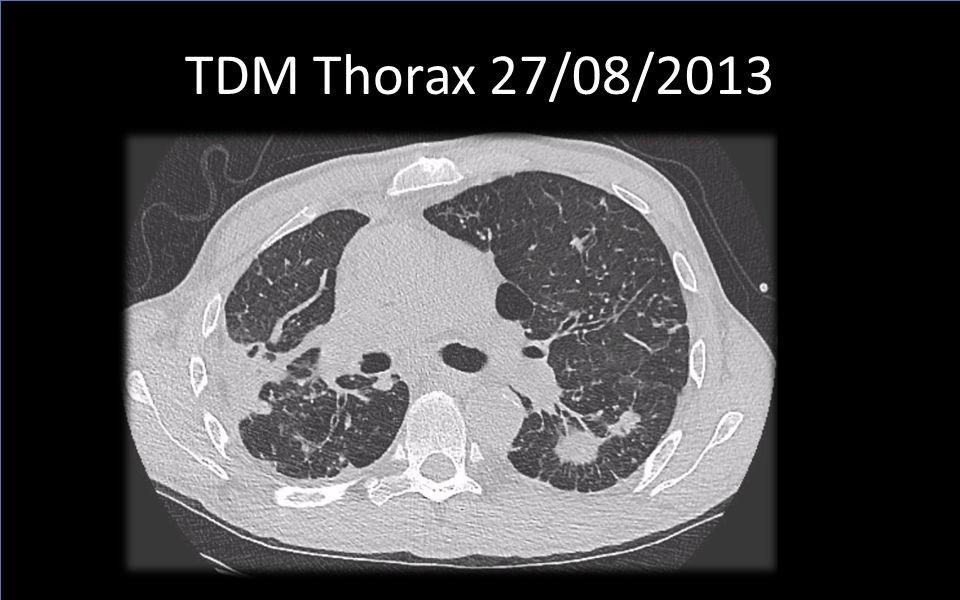TDM Thorax 27/08/2013