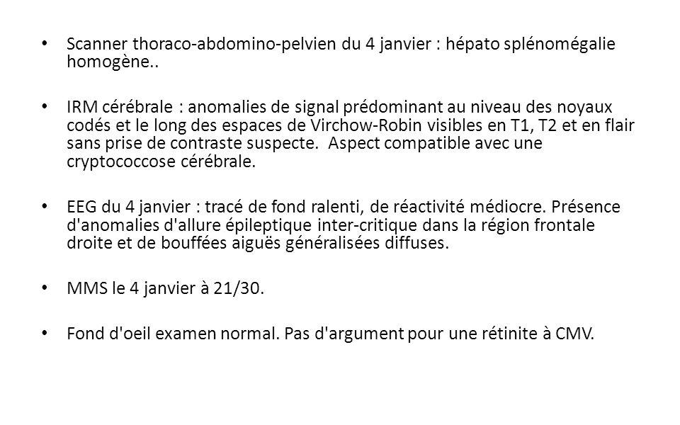 Scanner thoraco-abdomino-pelvien du 4 janvier : hépato splénomégalie homogène..