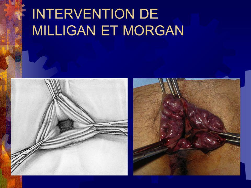 INTERVENTION DE MILLIGAN ET MORGAN