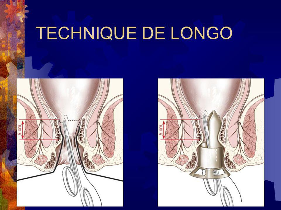 TECHNIQUE DE LONGO