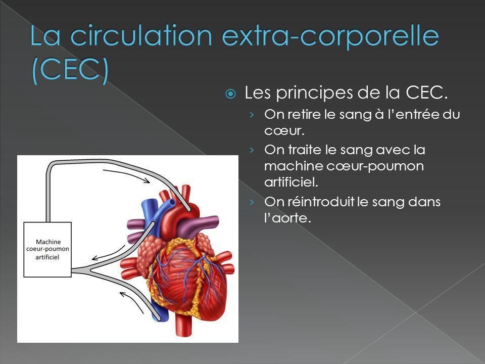La circulation extra-corporelle (CEC)