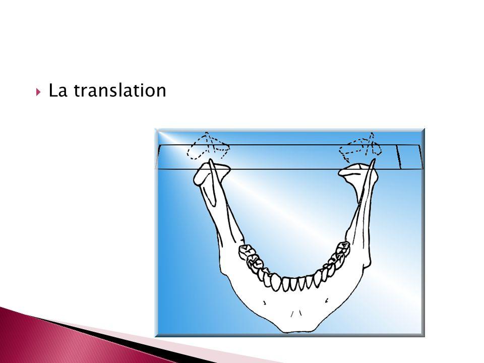 La translation