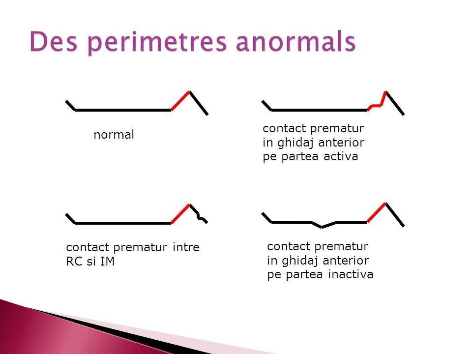 Des perimetres anormals