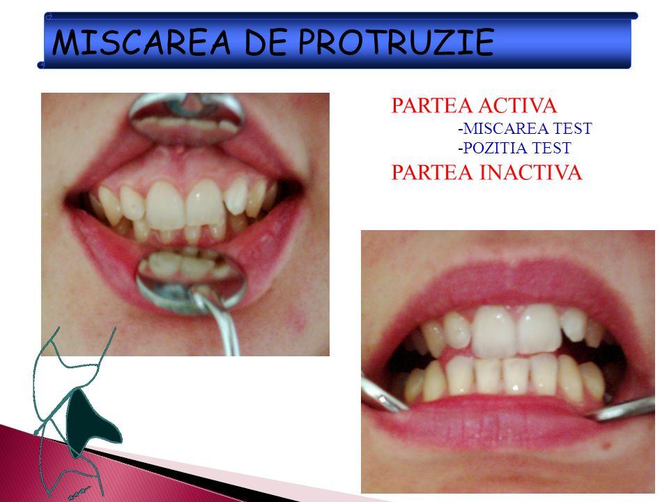 MISCAREA DE PROTRUZIE PARTEA ACTIVA PARTEA INACTIVA -MISCAREA TEST