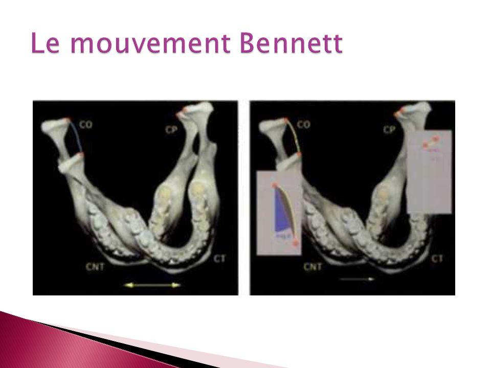 Le mouvement Bennett