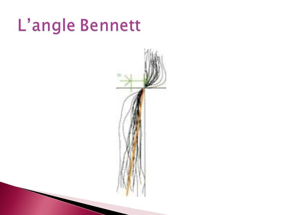 L'angle Bennett