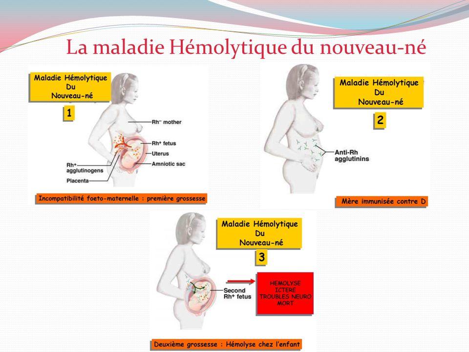 La maladie Hémolytique du nouveau-né