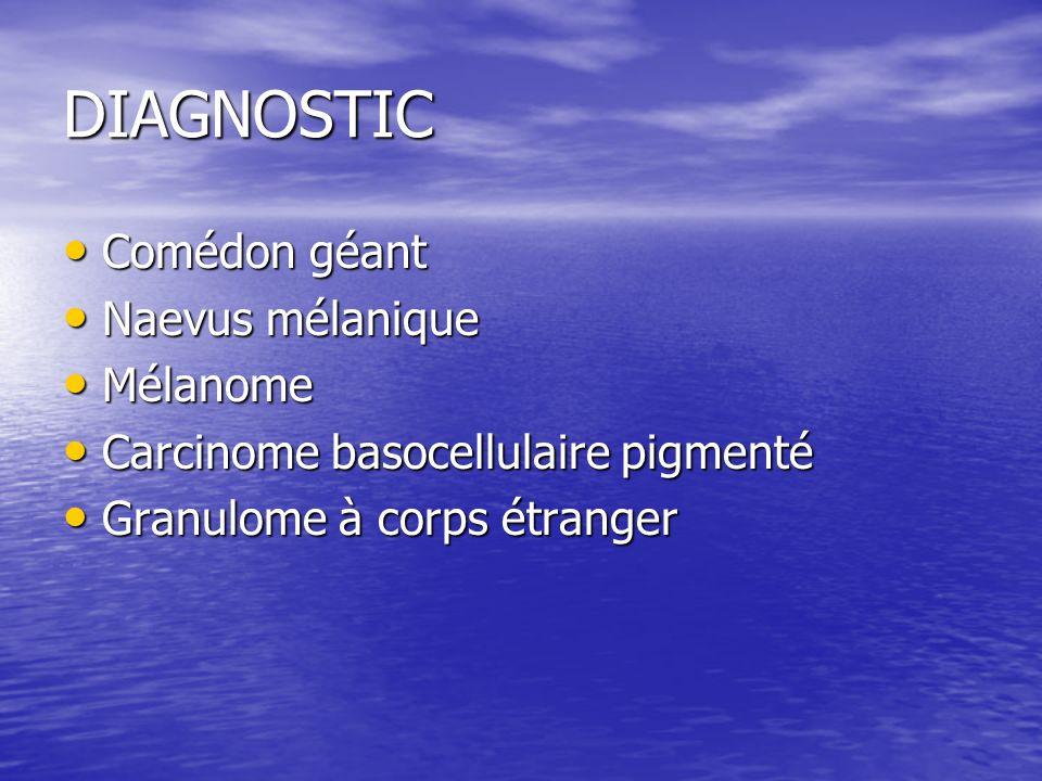 DIAGNOSTIC Comédon géant Naevus mélanique Mélanome