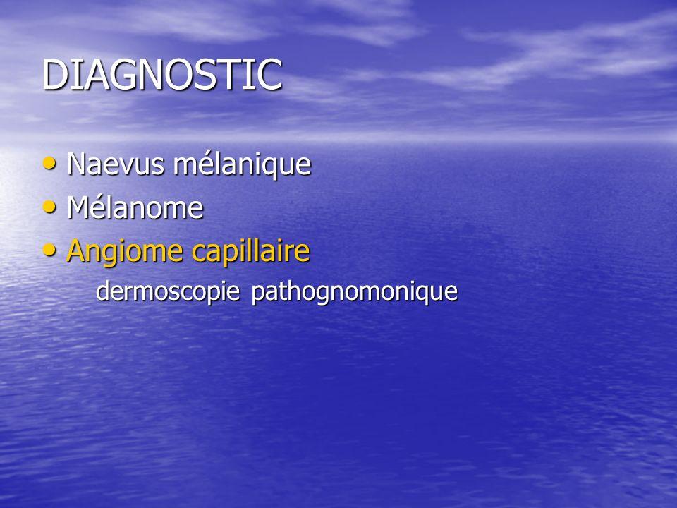 DIAGNOSTIC Naevus mélanique Mélanome Angiome capillaire