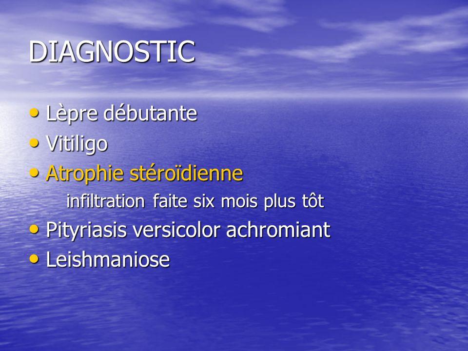 DIAGNOSTIC Lèpre débutante Vitiligo Atrophie stéroïdienne