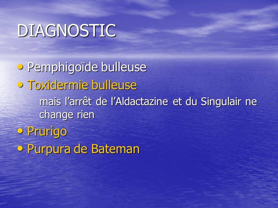 DIAGNOSTIC Pemphigoïde bulleuse Toxidermie bulleuse Prurigo