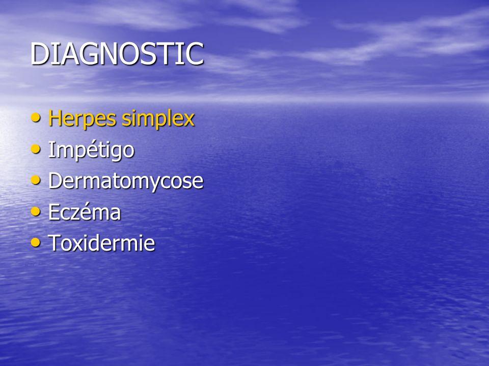 DIAGNOSTIC Herpes simplex Impétigo Dermatomycose Eczéma Toxidermie