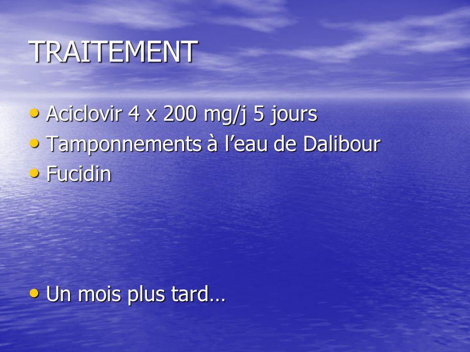 TRAITEMENT Aciclovir 4 x 200 mg/j 5 jours