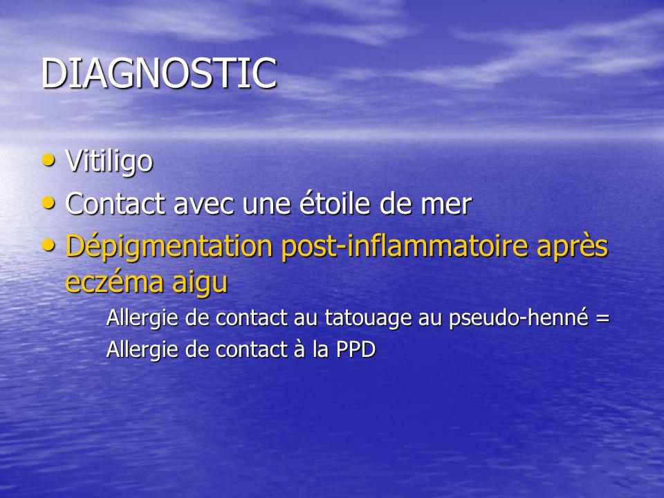 DIAGNOSTIC Vitiligo Contact avec une étoile de mer
