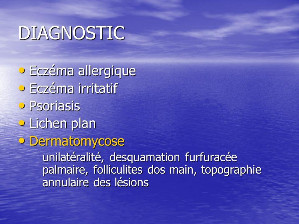 DIAGNOSTIC Eczéma allergique Eczéma irritatif Psoriasis Lichen plan