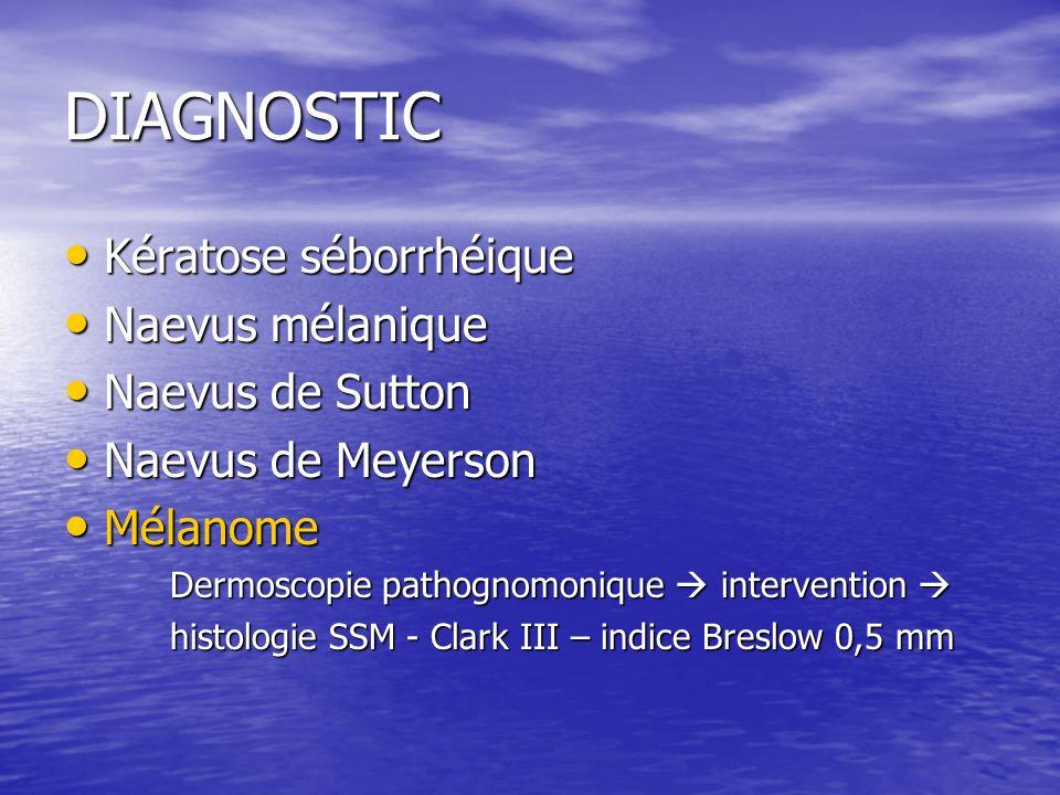 DIAGNOSTIC Kératose séborrhéique Naevus mélanique Naevus de Sutton