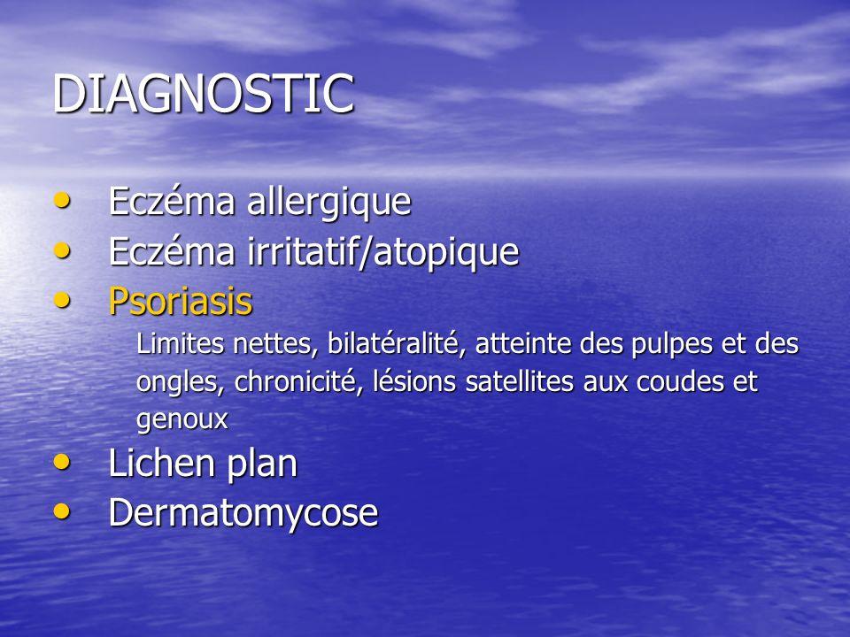 DIAGNOSTIC Eczéma allergique Eczéma irritatif/atopique Psoriasis