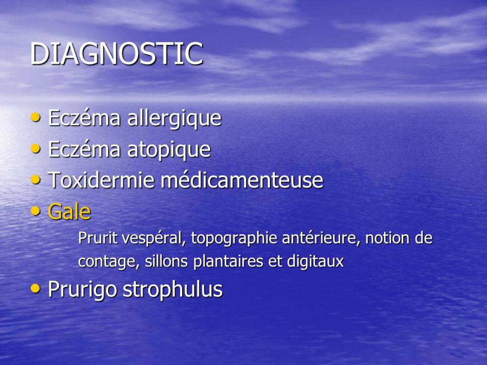 DIAGNOSTIC Eczéma allergique Eczéma atopique Toxidermie médicamenteuse