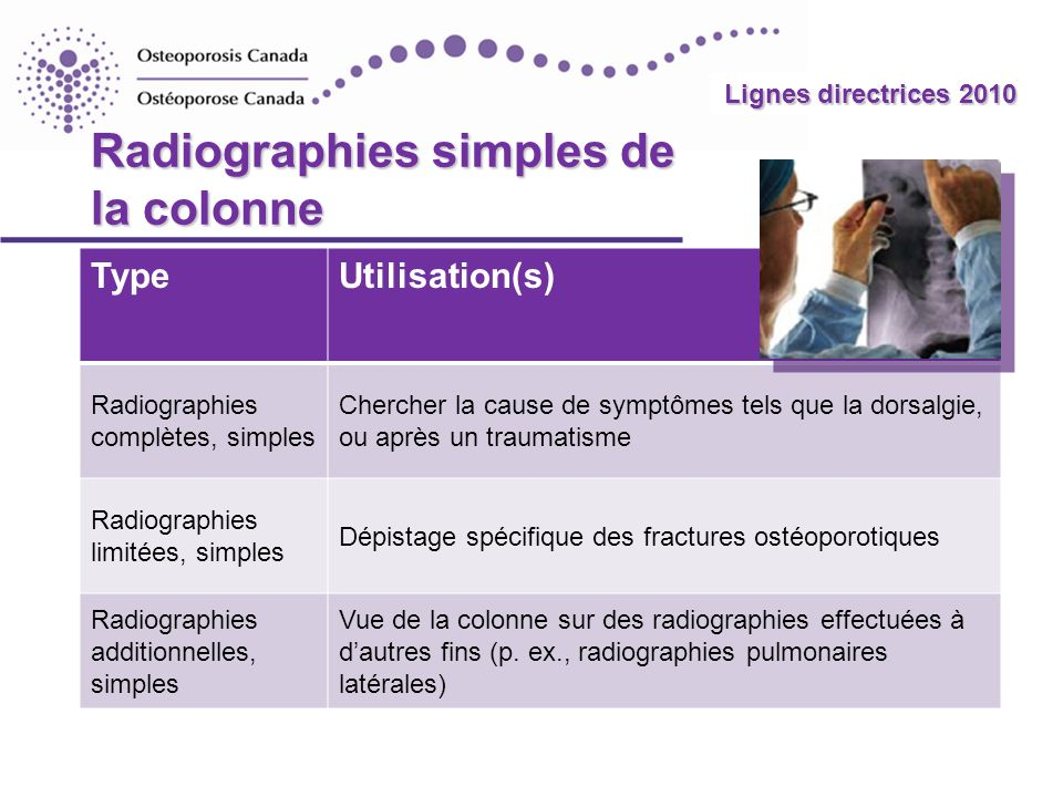 Radiographies simples de la colonne
