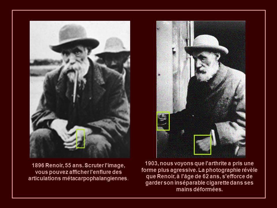 1903, nous voyons que l arthrite a pris une forme plus agressive