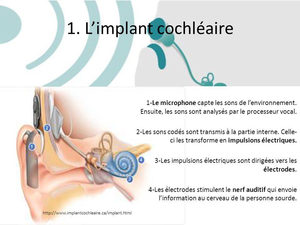 1. L'implant cochléaire 1-Le microphone capte les sons de l'environnement. Ensuite, les sons sont analysés par le processeur vocal.