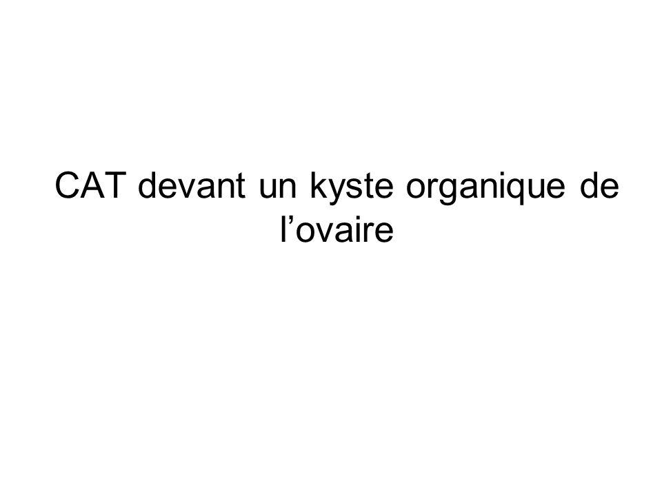 CAT devant un kyste organique de l'ovaire