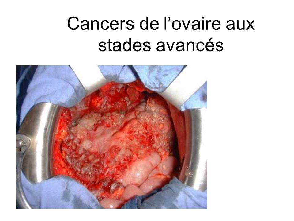 Cancers de l'ovaire aux stades avancés