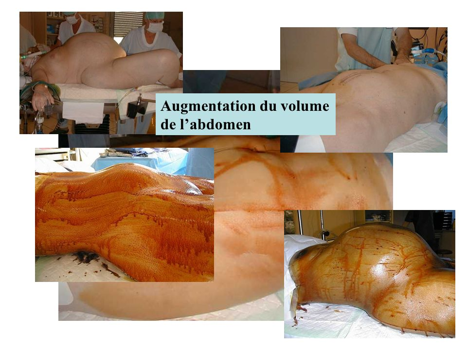 Augmentation du volume de l'abdomen