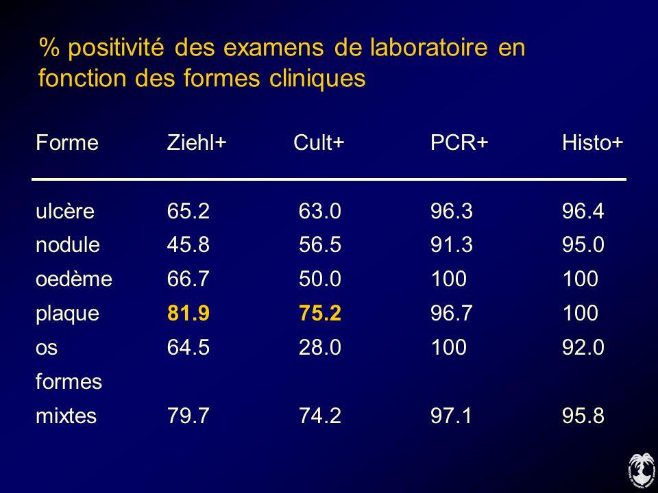 % positivité des examens de laboratoire en fonction des formes cliniques