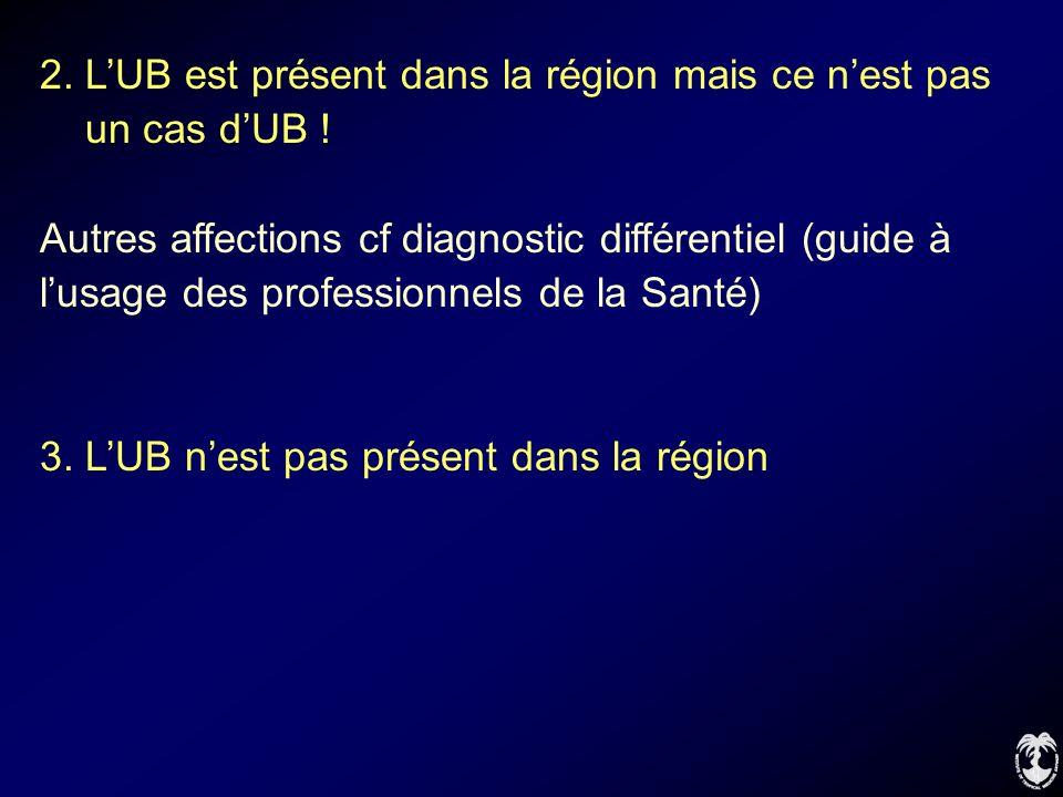 2. L'UB est présent dans la région mais ce n'est pas