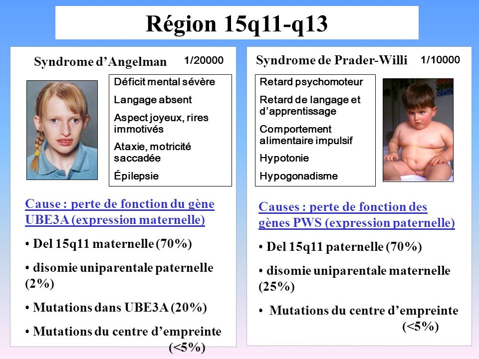 Région 15q11-q13 Syndrome d'Angelman Syndrome de Prader-Willi