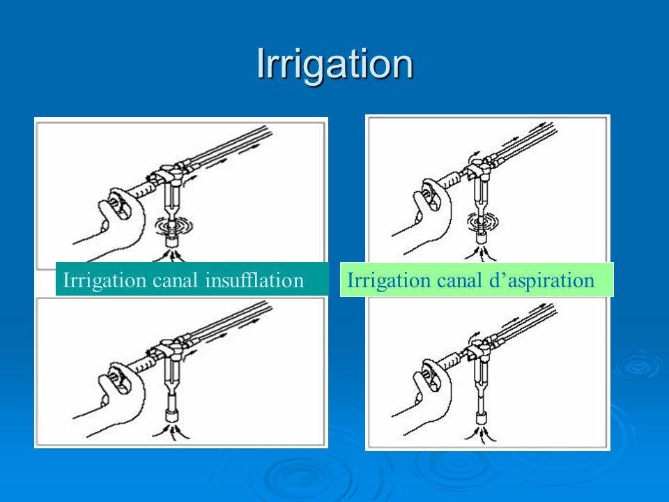 Irrigation Irrigation canal insufflation Irrigation canal d'aspiration